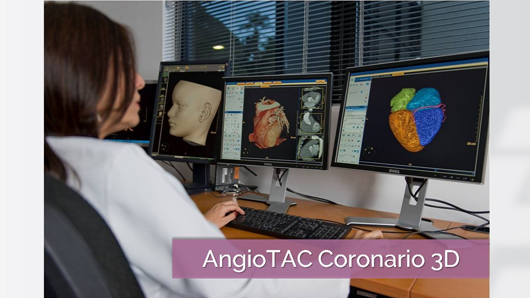 AngioTAC coronario IDACA 3D Blog