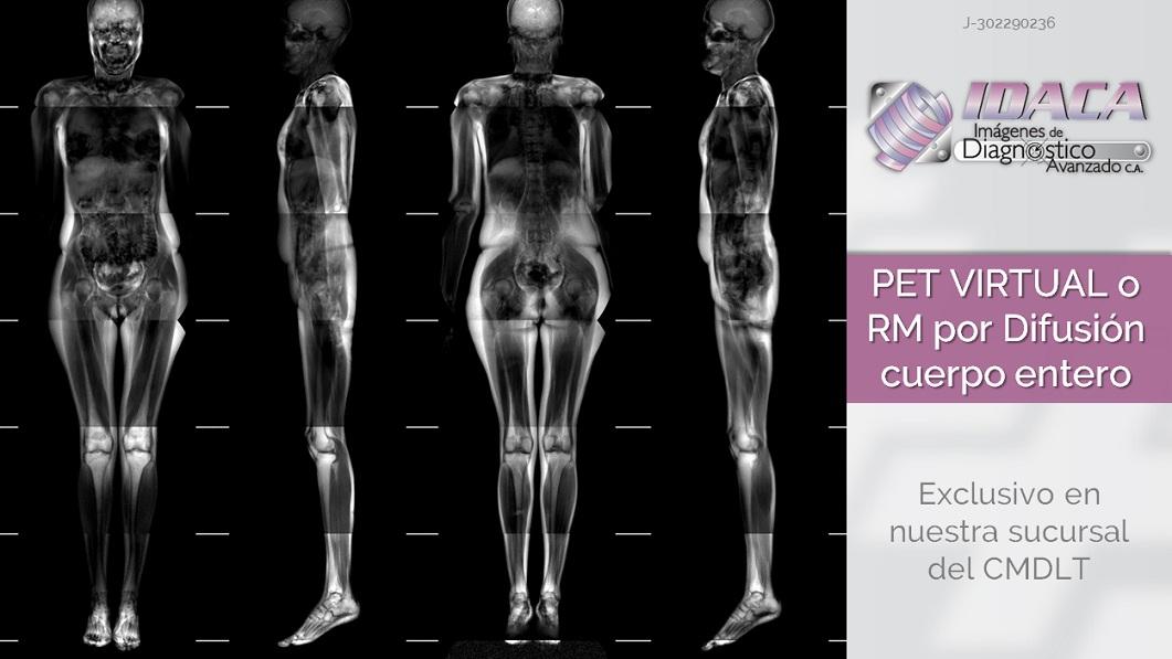 Resonancia magnetica de todo el cuerpo precio